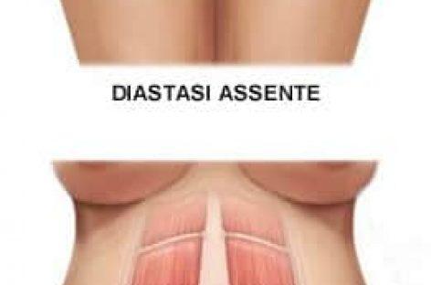 Esercizi per diastasi addominale