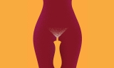 Brufoli vaginali